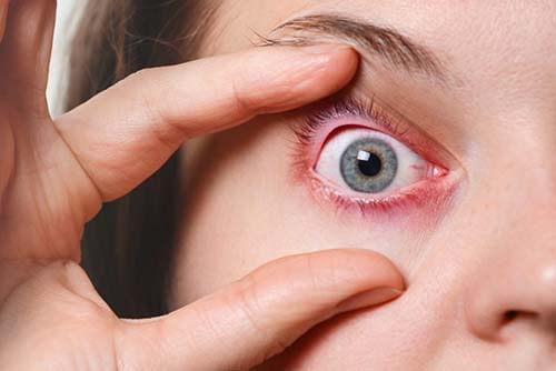 reazione allergica al makeup degli occhi? Ecco i sintomi